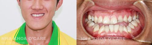 răng mọc sai lệch