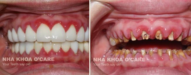 Viêm nướu sau khi bọc răng sứ